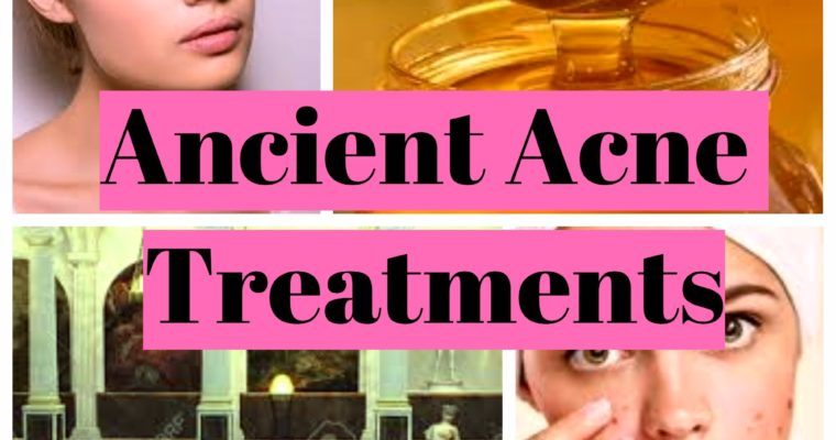 Acne in ancient history and treatments